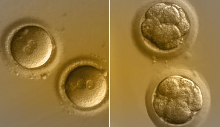 Il trasferimento embrionale è ritenuta una semplice procedura ma è una manovra molto delicata.