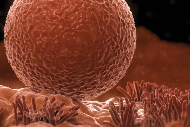 Bassa riserva ovarica anche in giovane età