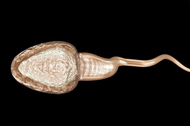 Alterazioni della morfologia spermatica