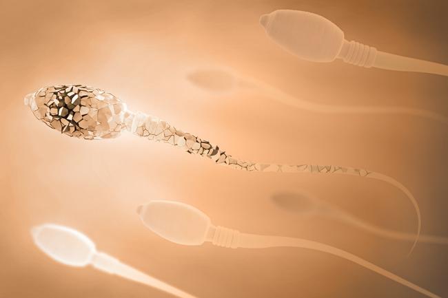 Infertilità maschile e Frammentazione spermatica